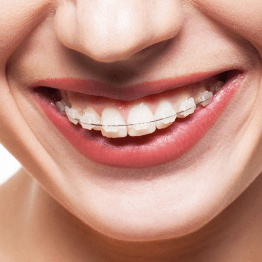 Quick Braces are the most time-efficient way to get a straighter smile! Our dentists use orthodontic techniques to ensure that your teeth get straighter fast, and stay that way for years to come. Our custom retainers provide a non-intrusive way to keep your teeth straight following the quick braces treatment, and you only need to wear them at night, so you can be free during the day!