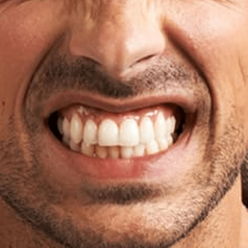 Bruxing is the habit of unconsciously gritting or grinding the teeth, especially in situations of stress or during sleep. While bruxing, the lower jaw moves side-to-side and/or back and forth while the upper and lower teeth are in contact.