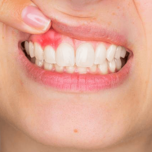 Gum Disease is the inflammation and redness that surrounds a tooth. Gum disease often appears where the gums are not healthy, and is also the first sign of tooth decay. If you suffer from gum disease, contact your dentist today or book online below.