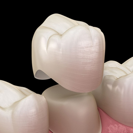 A dental crown is a cover made in the shape of a tooth, to go over a tooth right down to the gum line. Its purpose is to restore the tooth's appearance, function and strength.