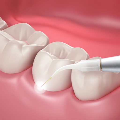 Laser dentistry is a state-of-the-art procedure that harnesses the properties of lasers to combat gum disease. At Envisage Dental, we prescribe laser treatments to patients who have matured cases of gingivitis as a pain-free way to kickstart the healing process.